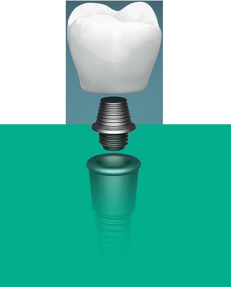 dental implant graphic NY