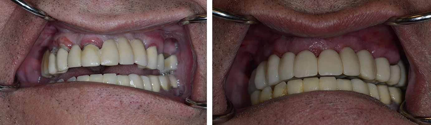 TeethXpress case 1 before and after NY photos in motion