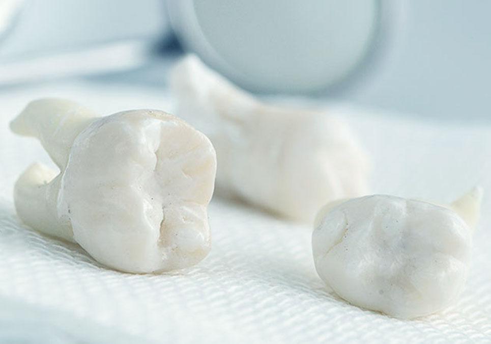 wisdom teeth extraction example