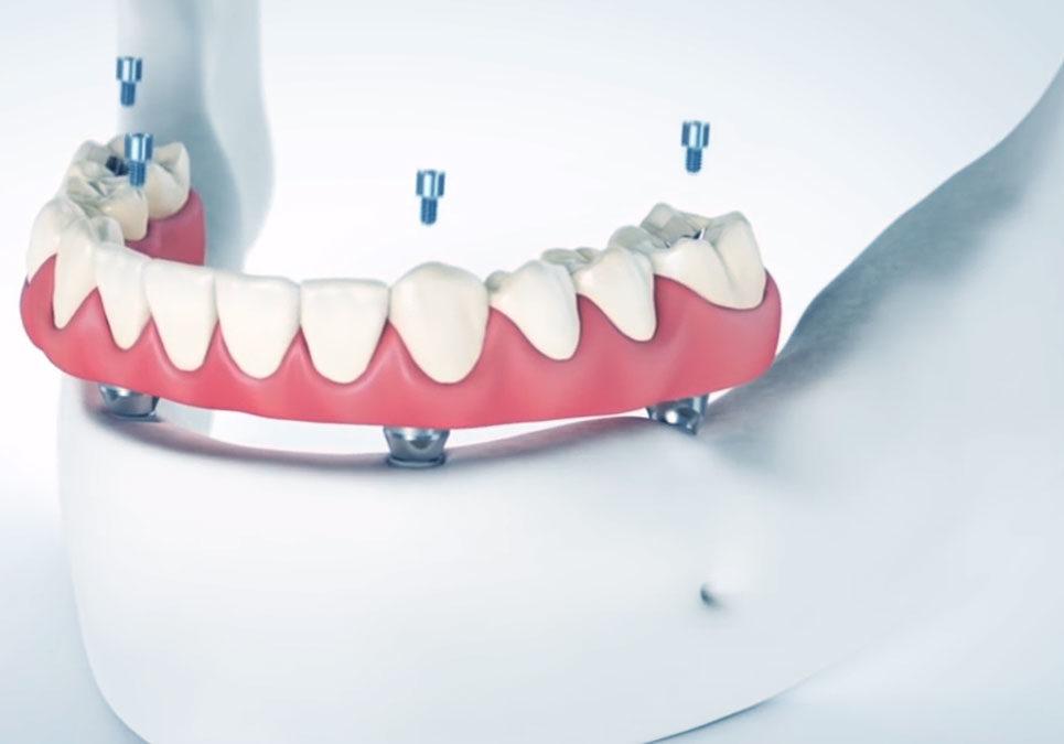 TeethXpress graphic NY