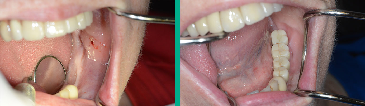 ridge graft and implants case 1 before and after