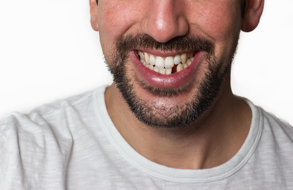 How Much Of An Issue Is Missing Teeth?