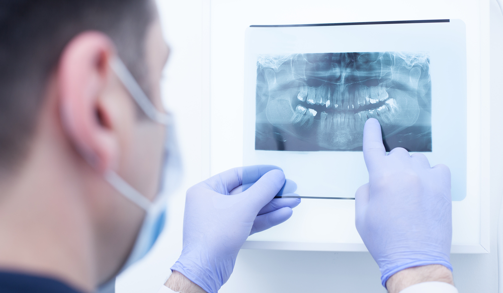 When to Seek Out a Dental Specialist